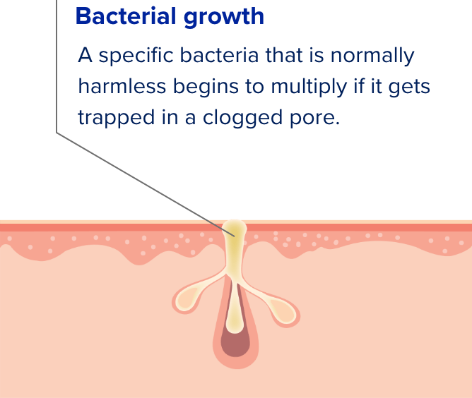 Cross section illustration of skin pores showing the four causes of acne